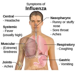 Influenza Sickness(Signs,Symptoms,treatment)